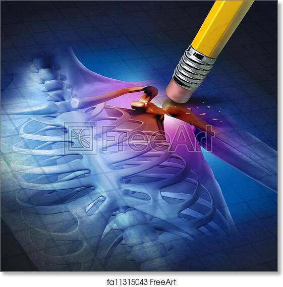 Free Art Print Of Shoulder Pain Relief Human Shoulder Pain Relief