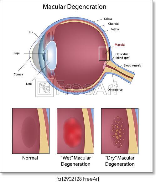 Free Art Print Of Eye Macular Degeneration Eye Disease Macular