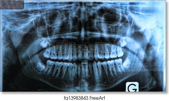 Free art print of Panoramic dental x-ray. Panoramic x-ray of a mouth ...