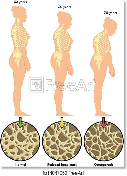 free art print of osteoporosis 3. medical illustration of the, Skeleton