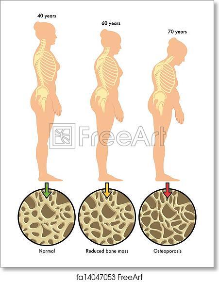 free art print of osteoporosis 3. medical illustration of the, Skeleton