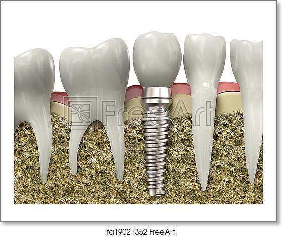 Free Art Print Of Dental Implant Very High Resolution 3d Rendering Of A Dental Implant Freeart Fa19021352