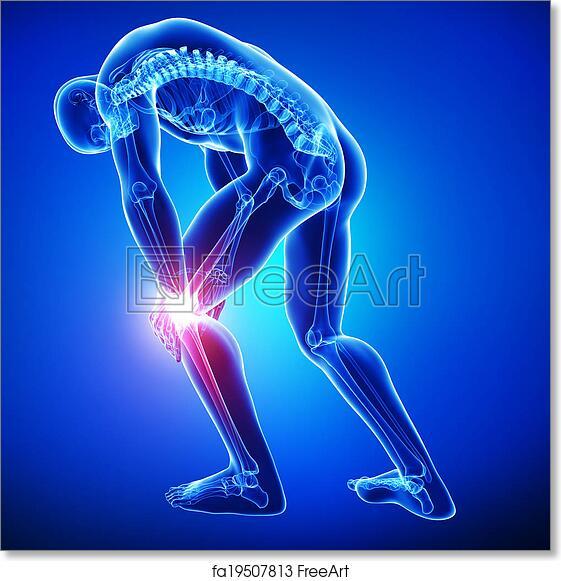 Free art print of Male knee pain anatomy on blue. 3d rendered ...