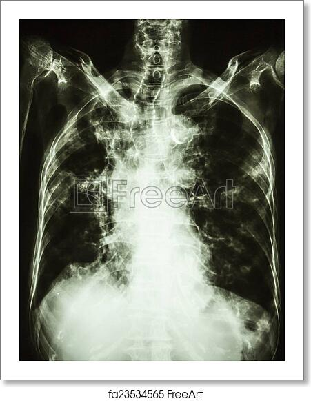 Free art print of Film chest X-ray PA upright of old patient: show  interstitial infiltration both lung and calcification at trachea(can seen  shape of