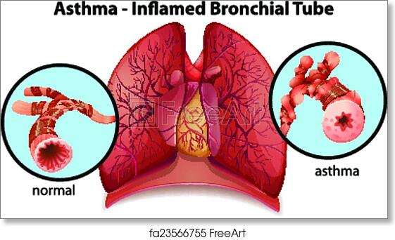 Free art print of An asthma-inflamed bronchial tube. An image of an ...