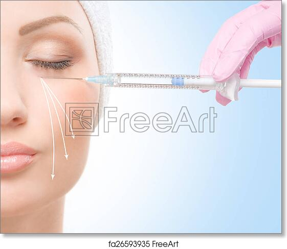 Free art print of Beautiful face and the syringe (plastic surgery and botox  inject