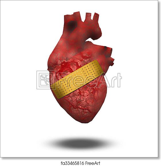 Free art print of Heart Attack or Wounded Heart. Heart with bandaid ...