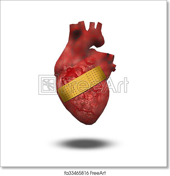 Free Art Print Of Heart Attack Or Wounded Heart Heart With Bandaid