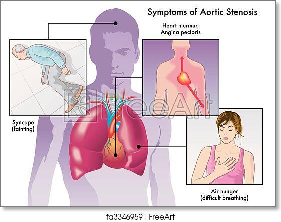 Free Art Print Of Symptoms Of Aortic Stenosis Medical Illustration