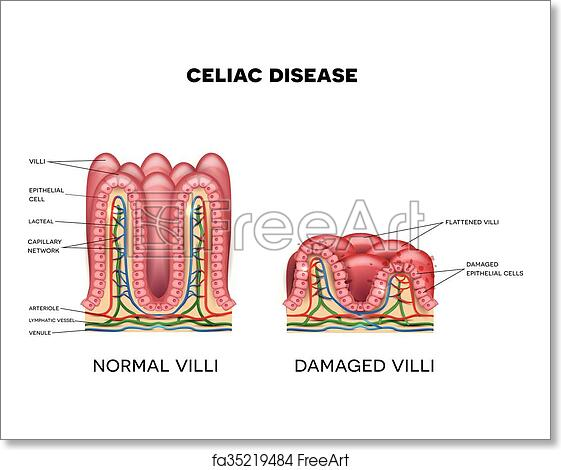 celiac disease affected small intestine villi on a white background   healthy villi and unhealthy villi with damaged cells