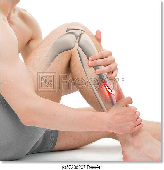 Free art print of Spiral Fracture of the Tibia - Leg Fracture 3D ...