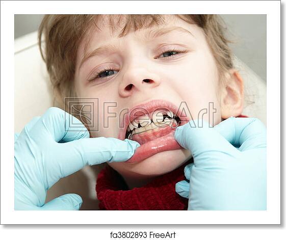 Free art print of At dentist medic orthodontic doctor examination