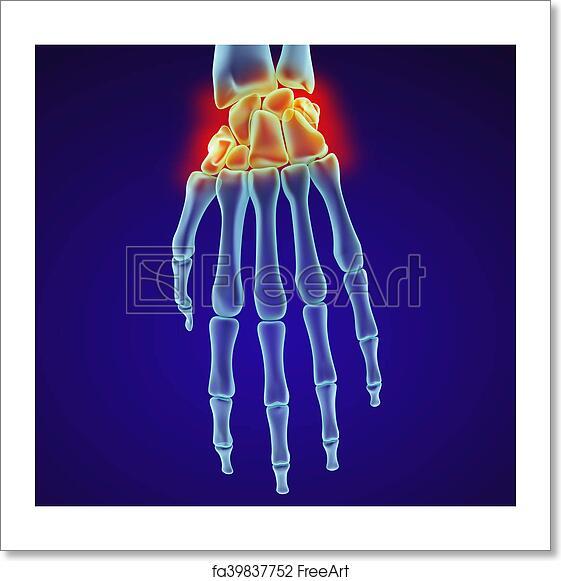Free Art Print Of Human Wrist Anatomy Xray View Medically Accurate