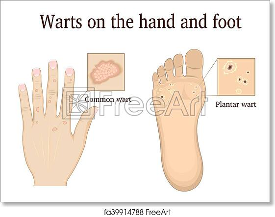 Admirable Free Art Print Of Warts On The Hand And Foot Warts On The Hand And Wiring 101 Archstreekradiomeanderfmnl