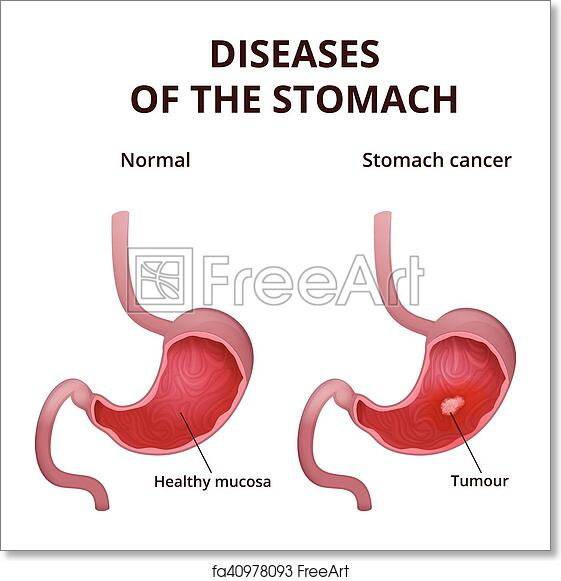 Free Art Print Of Anatomy Of The Human Stomach Medical Poster With