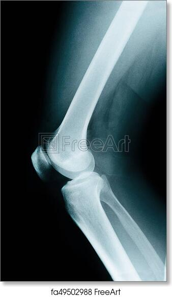 Free Art Print Of Knee Bone Anatomy Knee Bone Anatomy X Ray
