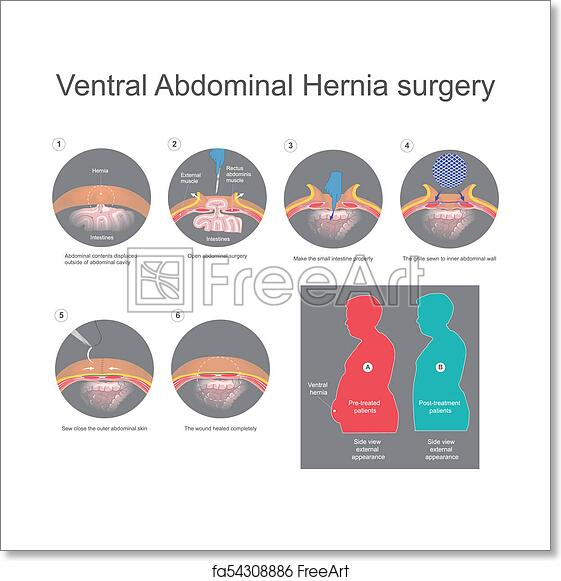 Free art print of Ventral hernia is a bulge of tissues through an