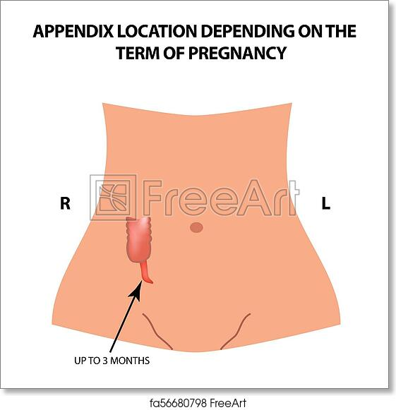 free art print of the location of the appendix depends on the term of  pregnancy  up to 3 months  infographics  vector illustration on isolated  background
