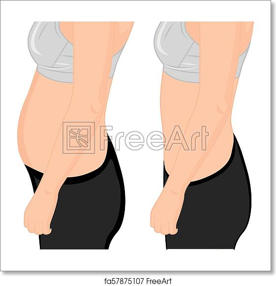 Free art print of Fat and slim girl's  Fat waist  Liposuction  Before and  after  Woman body correction vector illustration
