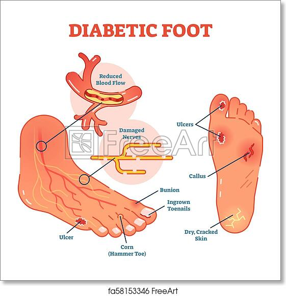 diabetic foot medical vector illustration scheme with common foot  conditions