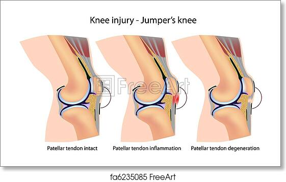 Free Art Print Of Jumpers Knee Anatomy Diagram Showing Mechanism