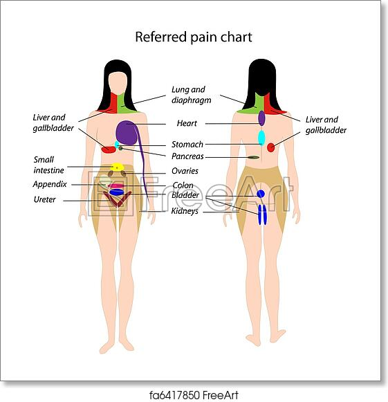 Free art print of Referred pain chart, eps8 Gallbladder Pain Location Diagram on