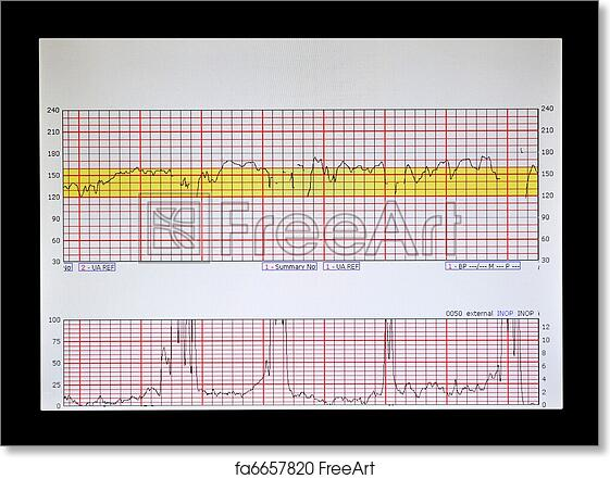 Cardiac monitor strip