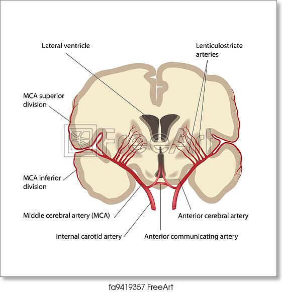 Free Art Print Of Middle Cerebral Artery Eps8 Middle Cerebral