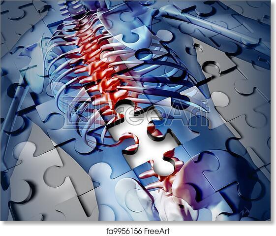 Free art print of Human Back Disease